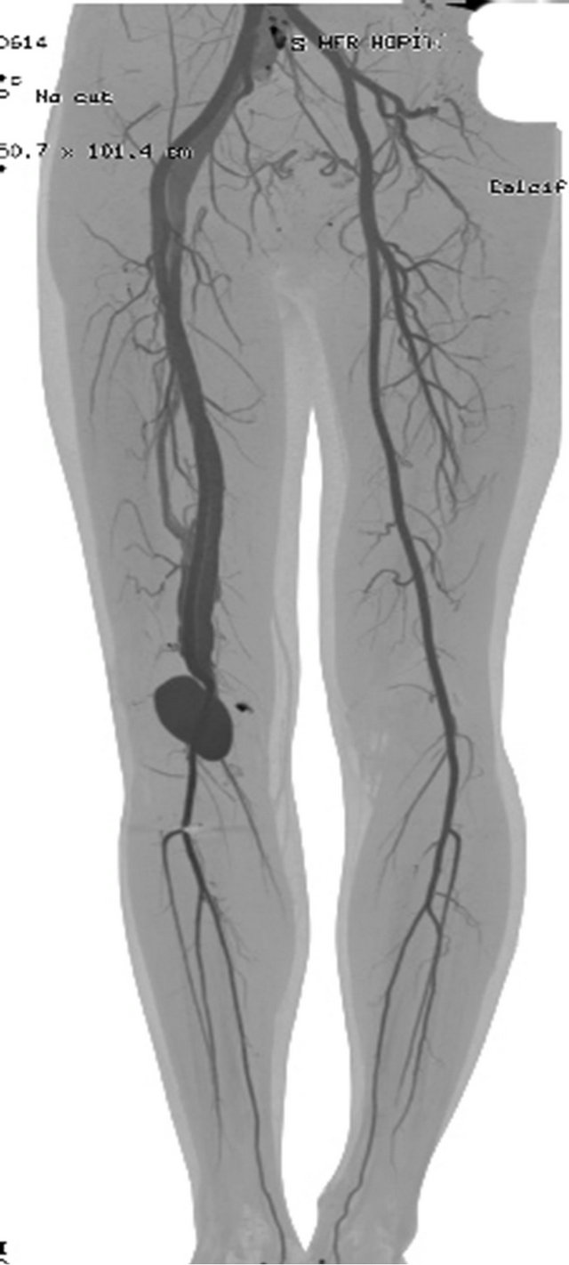 Popliteal Venous Pseudoaneurysm and Arteriovenous Fistula after ...