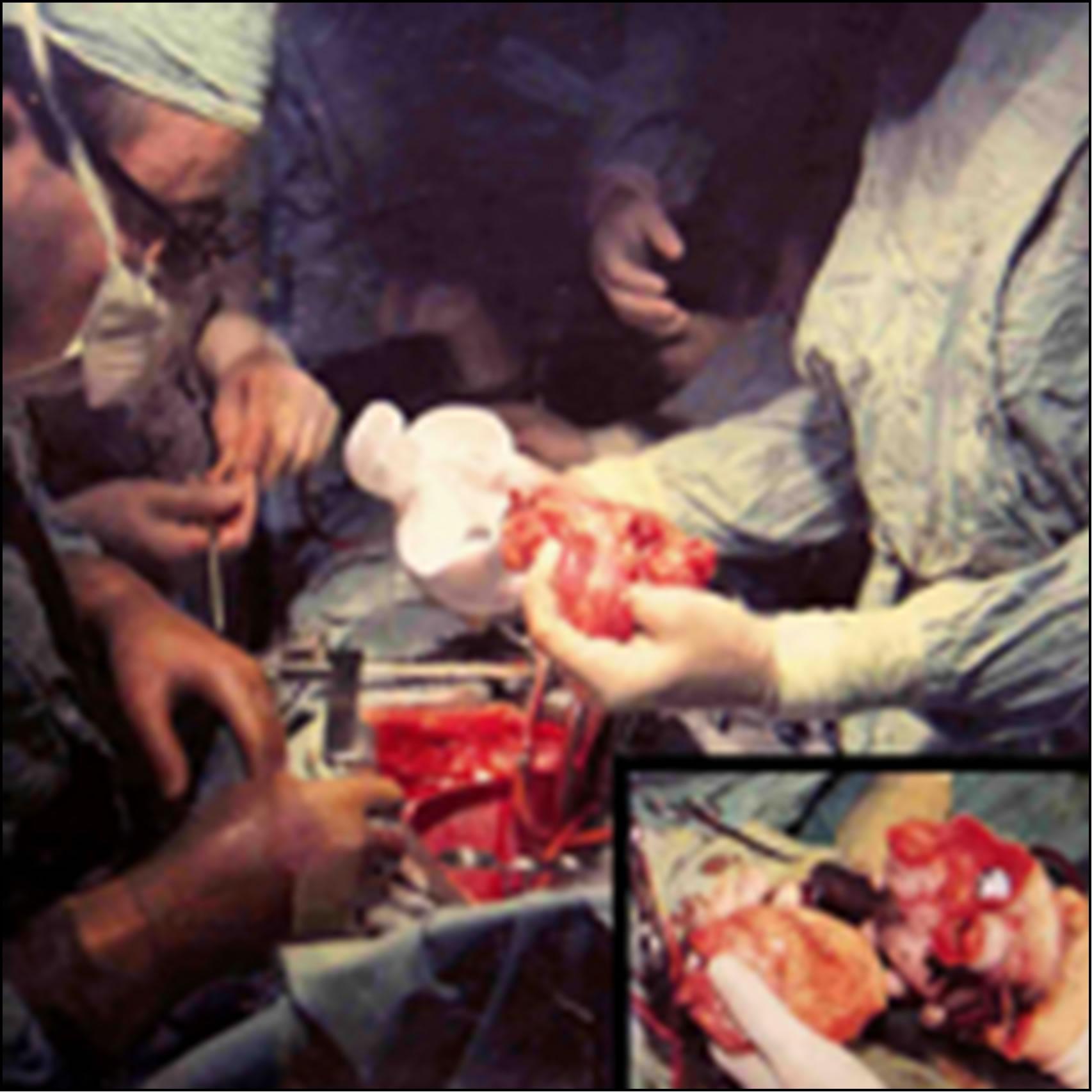 Heart transplant essay