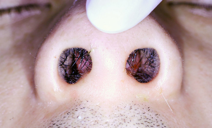 Spontaneous Nasal Septal Abscess Presenting As Complete