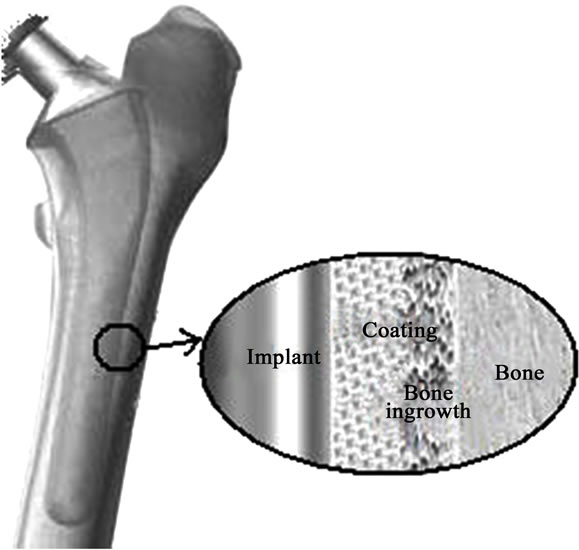 bone prothesis What are the different types of prosthetics a spacer between the bone prostheses enables them to glide over one another, as a natural knee does arm prosthesis.