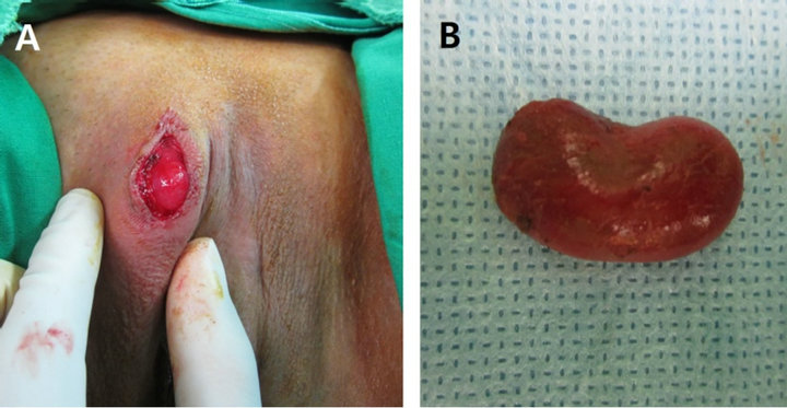 Figure 1 A The 2 5 1 5 cm mass at right labia majora B The