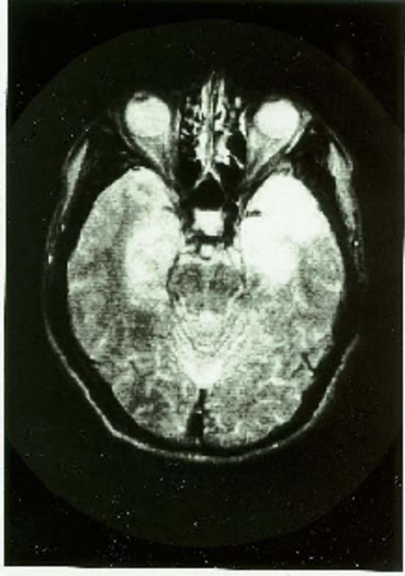 diagnose korsakov syndroom