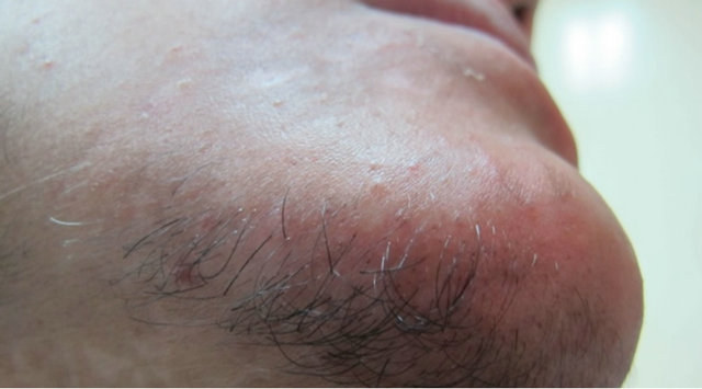 Treatment of Gray Hair in Vitiligo Patients by Direct
