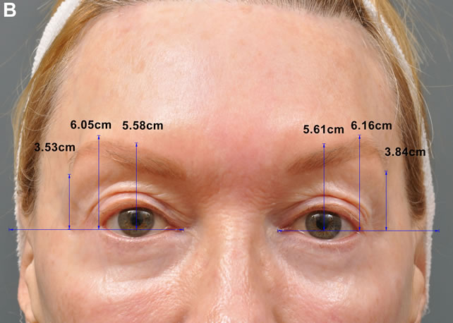 Microfocused Ultrasound for Nonablative Skin and Subdermal ...