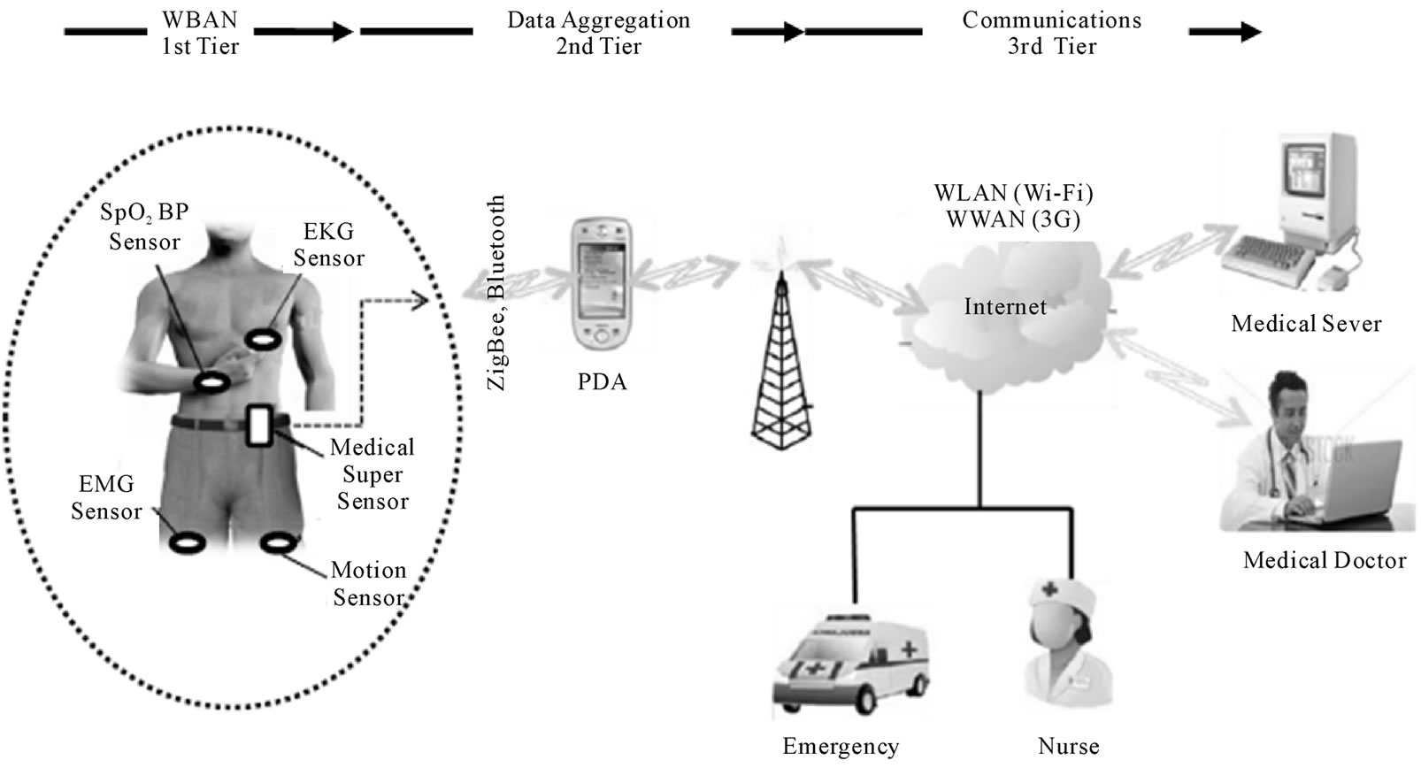 Brain Monitoring System : Using wearable sensors for remote healthcare monitoring system