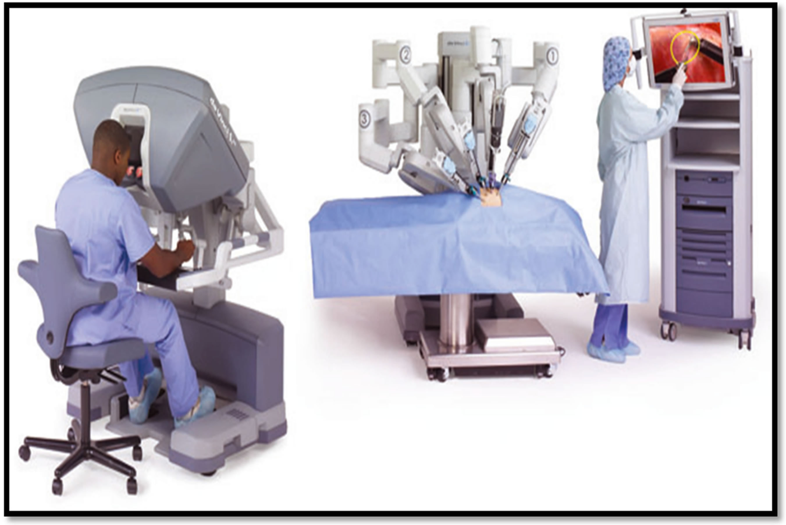 robot assisted surgery Robot-assisted surgery was found to be feasible and safe for the resection of select tumors located in the oral cavity, oropharynx, hypopharynx, and larynx, and.