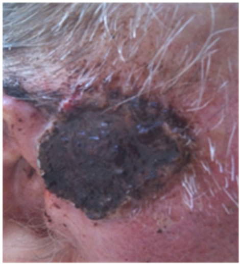 Curaderm<sup>BEC5</sup> for Skin Cancers, Is It? An Overview