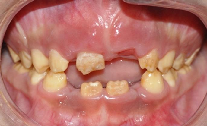 figure 4 anterior open bite present