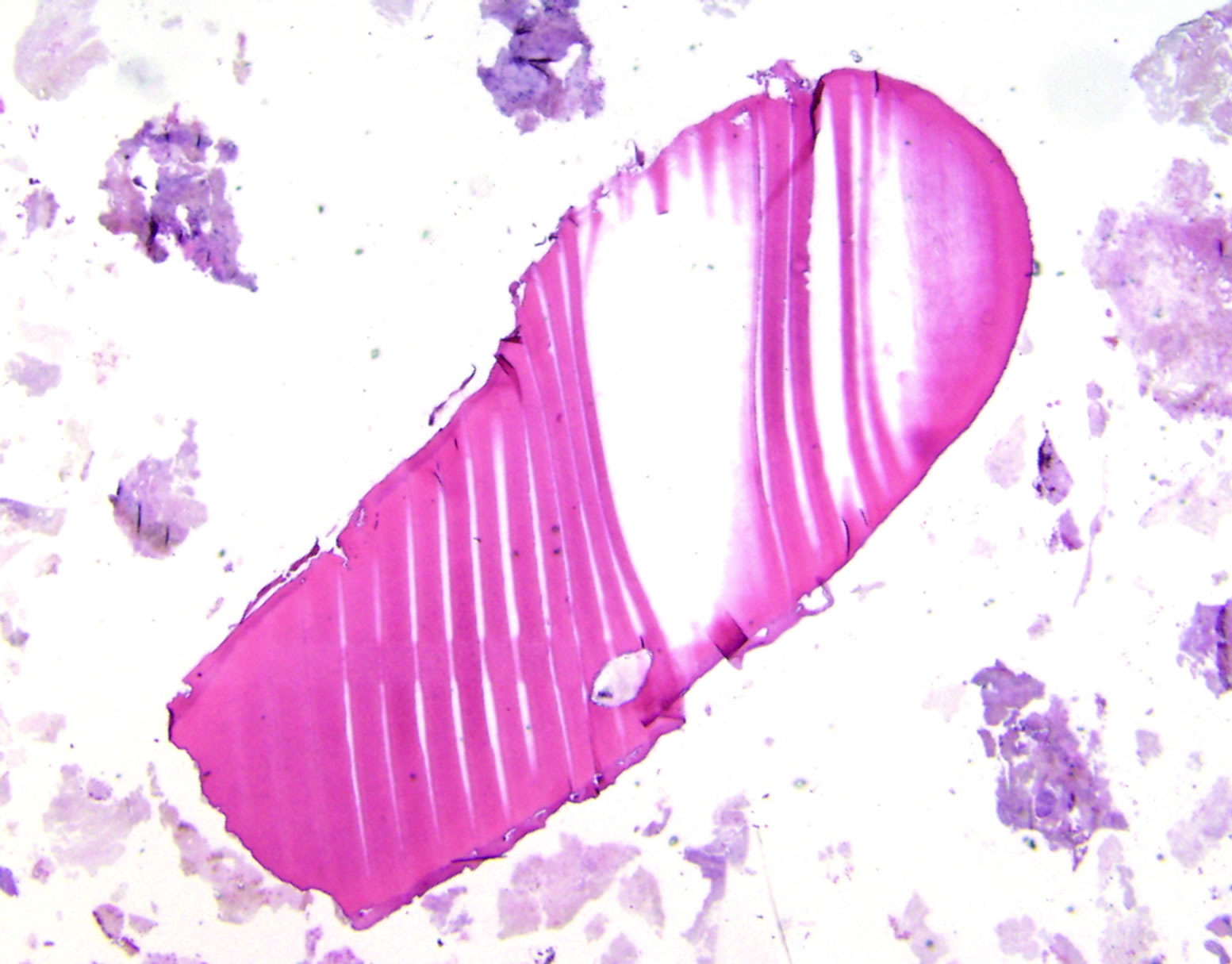 Compound Odontoma Histology Histopathology Low Power