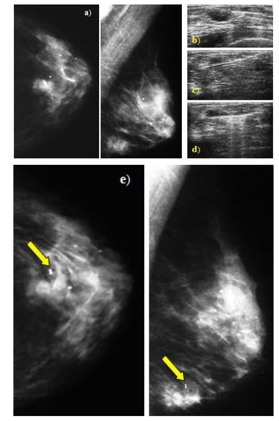 ultrasound guided breast biopsy procedure