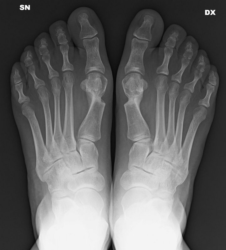 Minimally Invasive Surgery of the Forefoot: Current ...