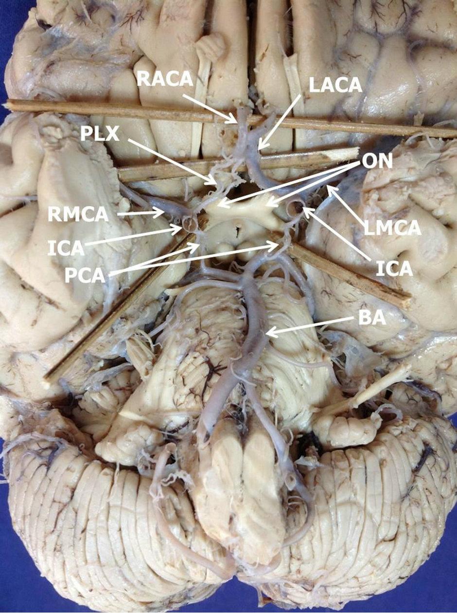 Right Cerebral of Right Anterior Cerebral
