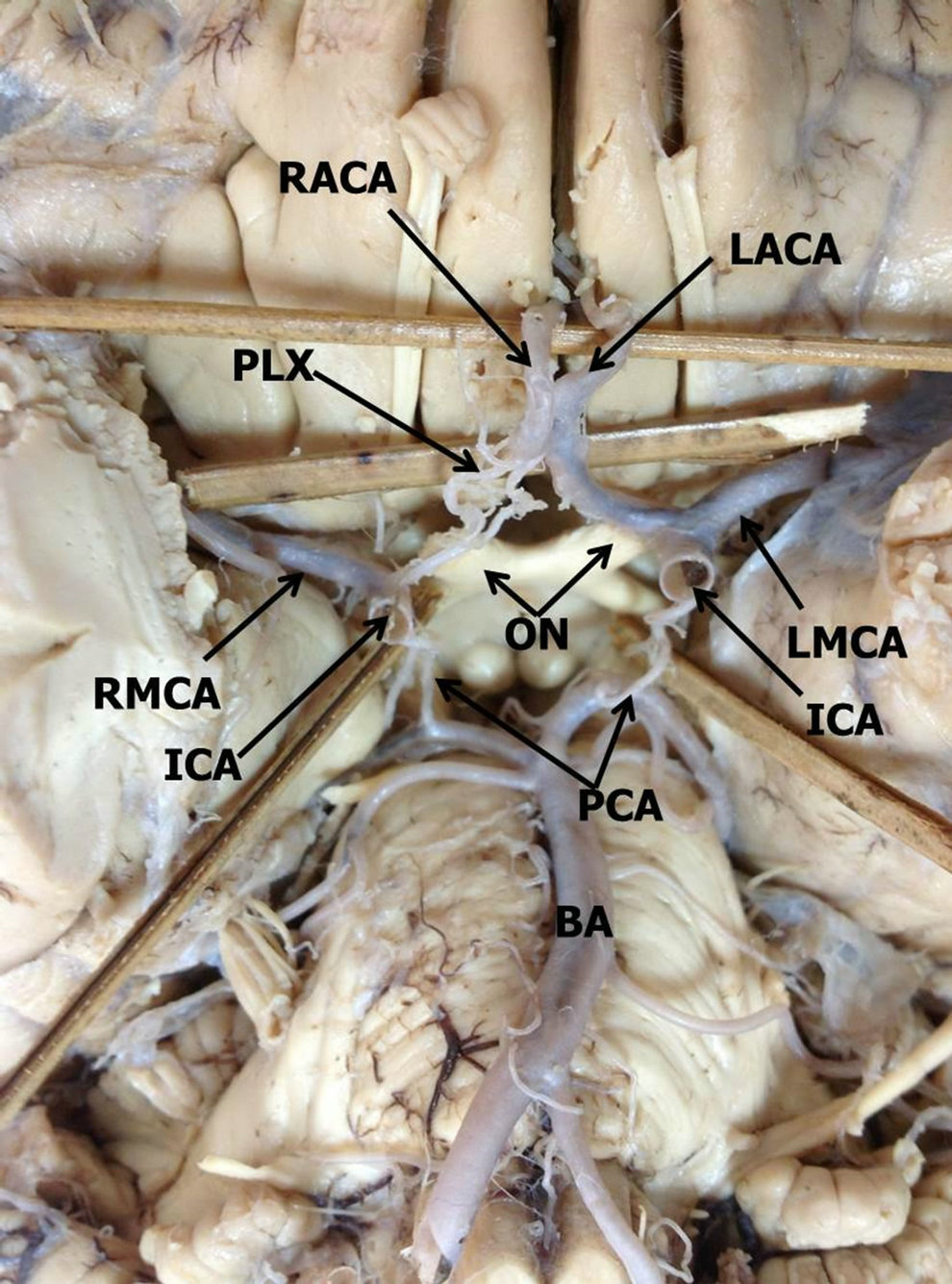 Hypoplastic plexiform right anterior cerebral artery and absence of ...