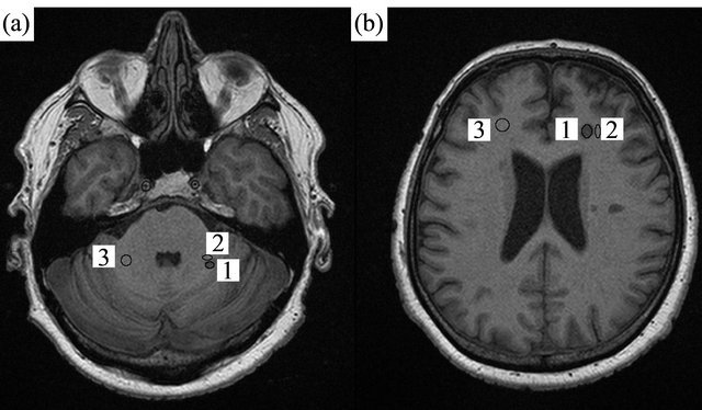 Lesion contrast differences in MRI sequences in multiple