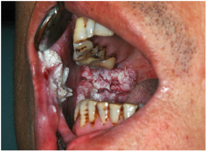 Squamous cell oral cancer — photo 15