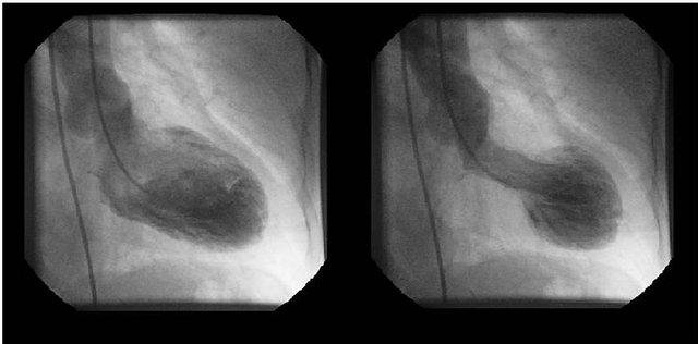 Gadolinium Enhanced Mri In Patients With Left Ventricular