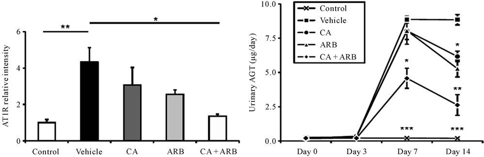 agt in anti glomerular basement membrane gbm disease