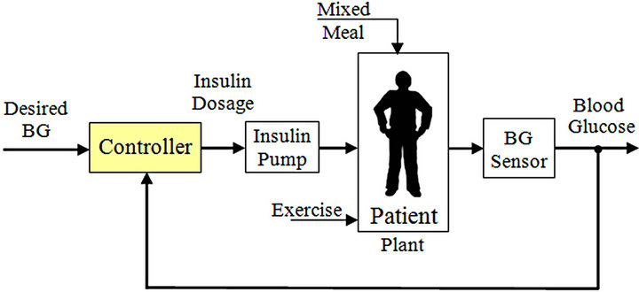 A Fuzzy Controller For Blood Glucose Insulin System