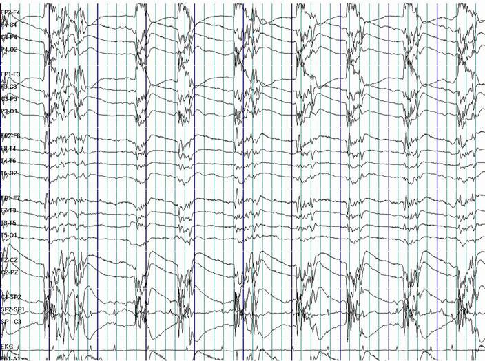 A Descriptive Analysis of Prognostic Indicators in Patients
