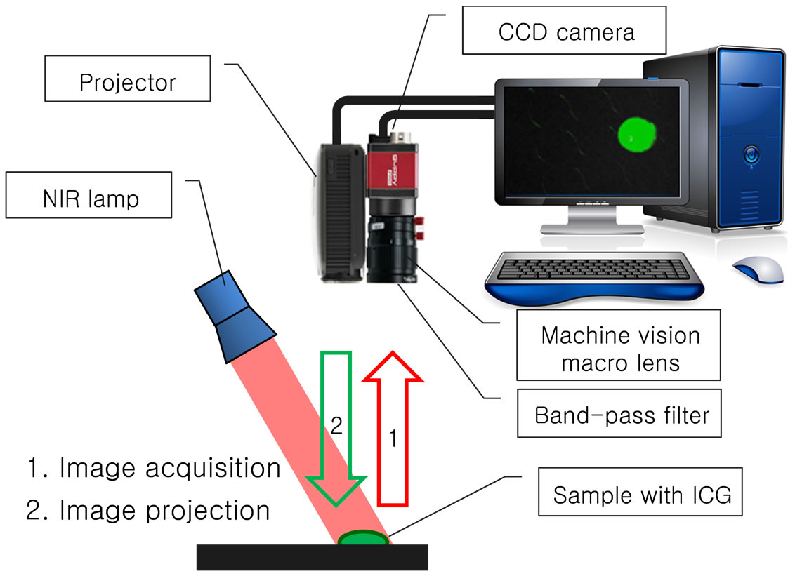Novel Imaging System For Positioning Of The Indocyanine Green  Icg  Target  Visible Projection