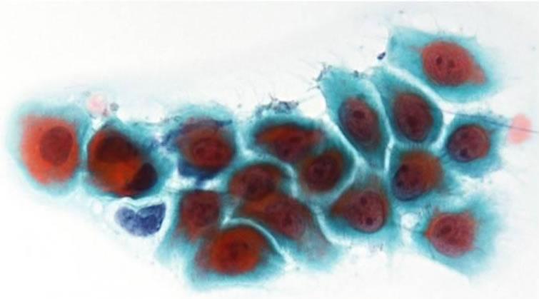 pemphigus vulgaris macroscopically and cytologically