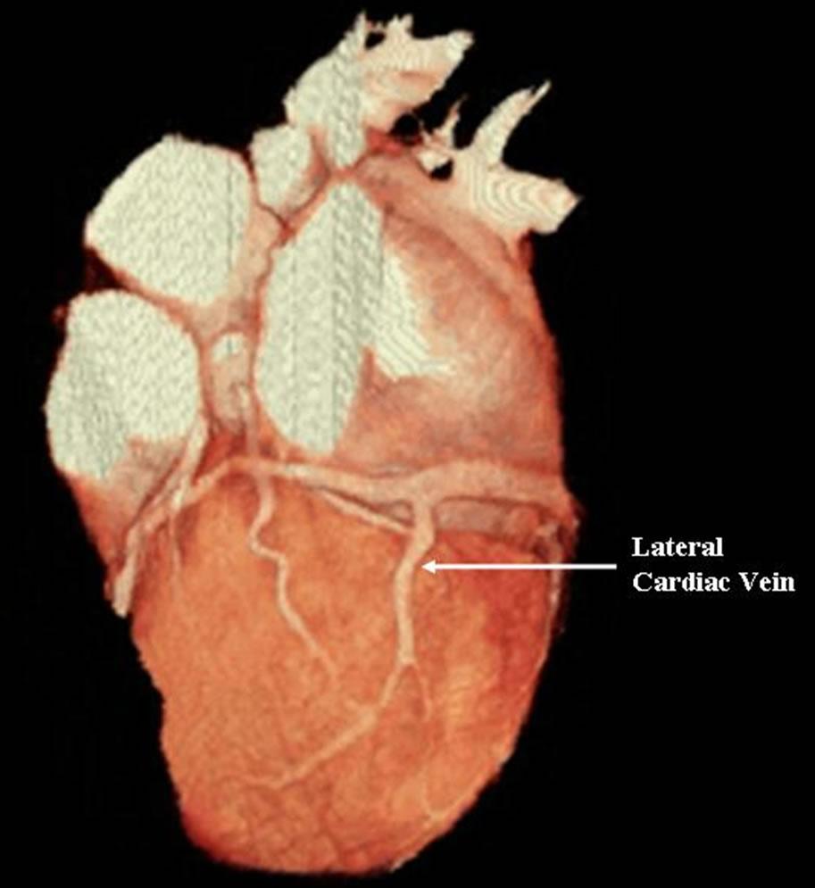 Cardiac venous anatomy