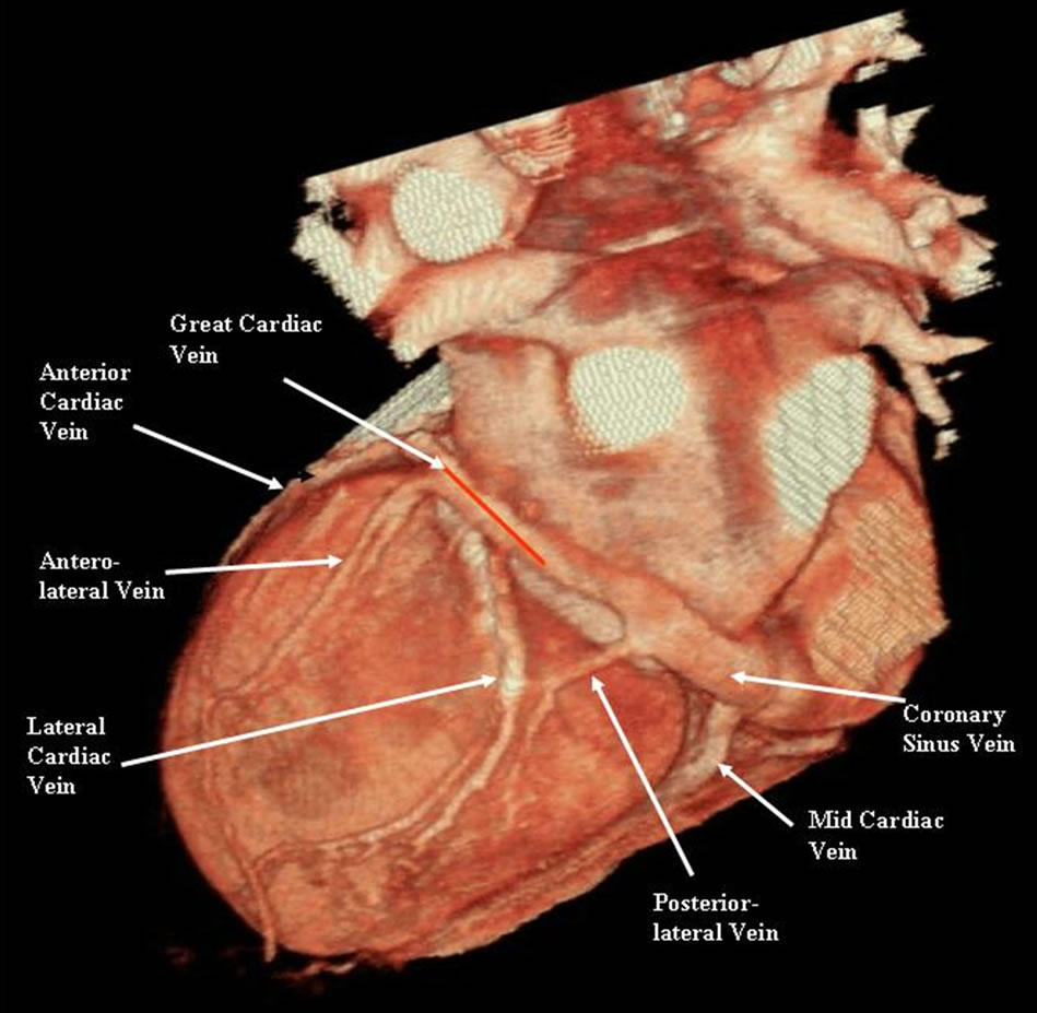 Evaluation of Coronary Venous Anatomy by Multislice Computed Tomography