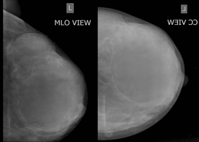 Evaluation of Breast Masses Using Mammography and Sonography as