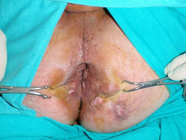 anus-fistula-in-repertory