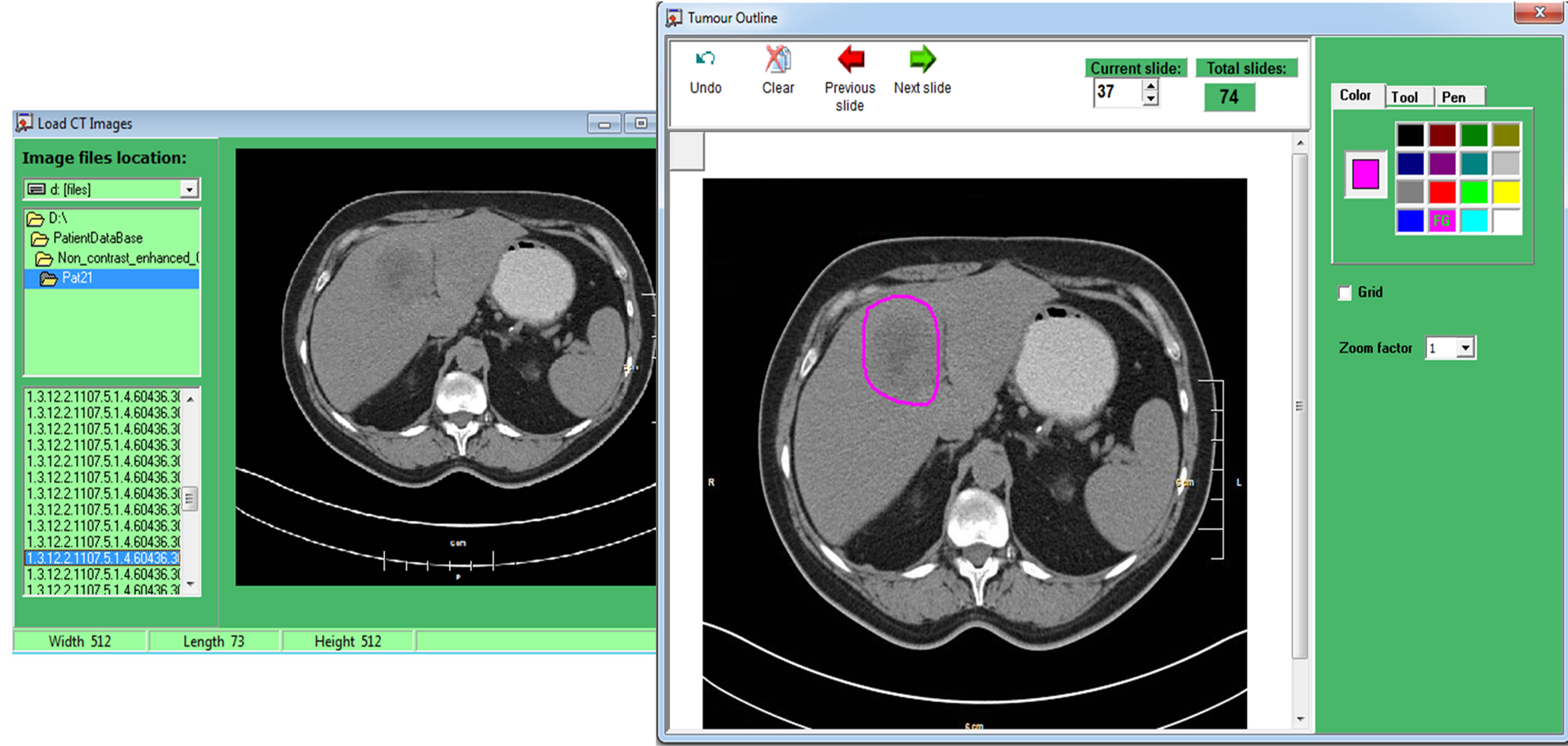 Image Processing Tool Promoting Decision-Making in Liver Surgery of ...