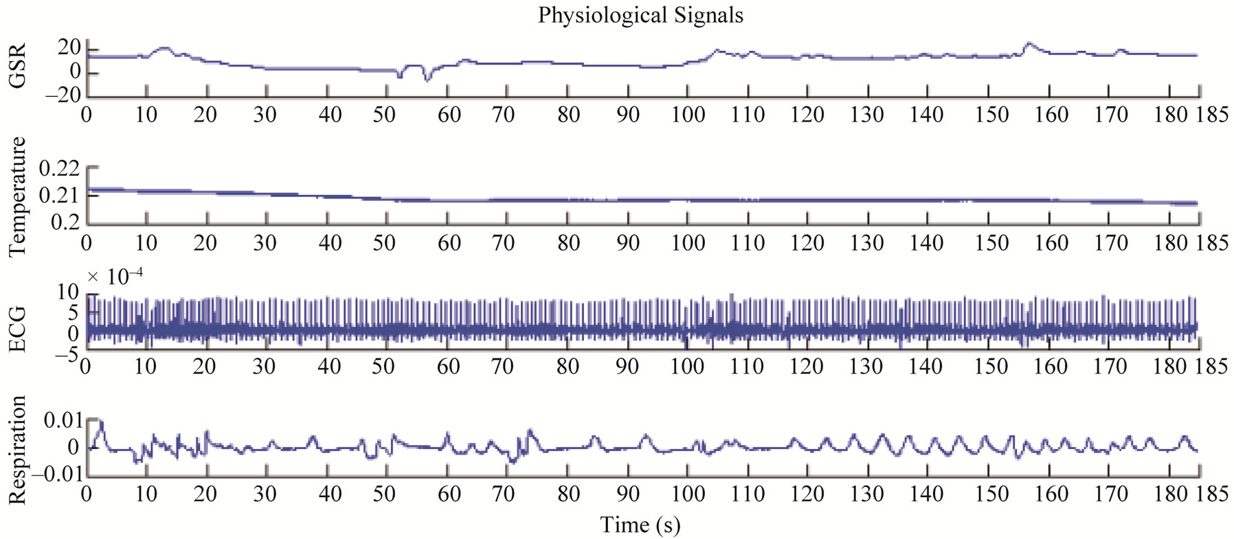 Emotions States Recognition Based On Physiological Parameters By Galvanic Skin Response Circuit Figure 4 Were Recorded From A Female Subject Aged 23 During The Shock Test First Signal Above Is Gsr Second One