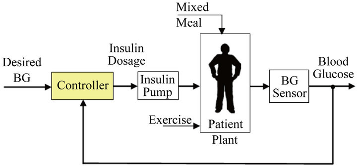 Design And Analysis Of A Sliding Table Controller For Diabetes