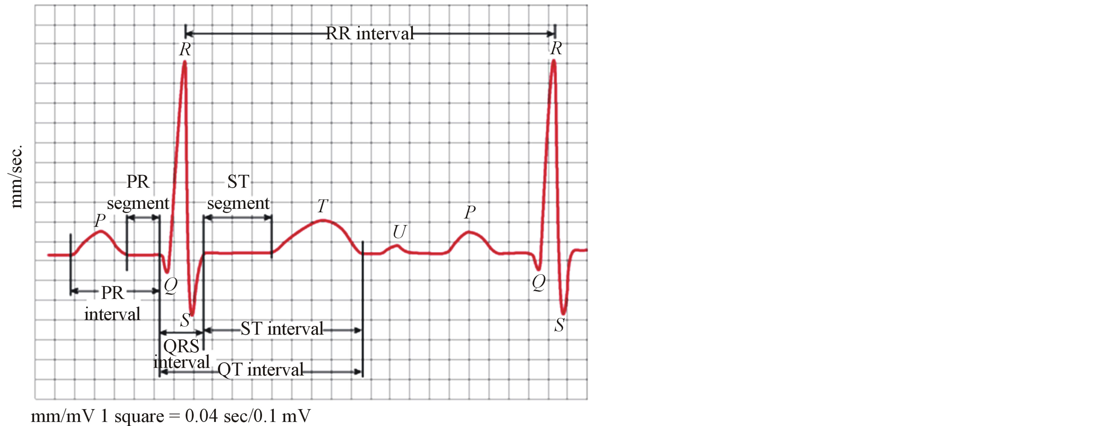 Compression of ECG Signals Based on DWT and Exploiting the