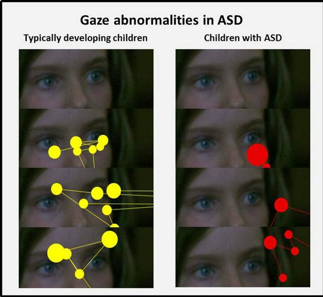 Eye tracking in studies of Autism Spectrum Disorder