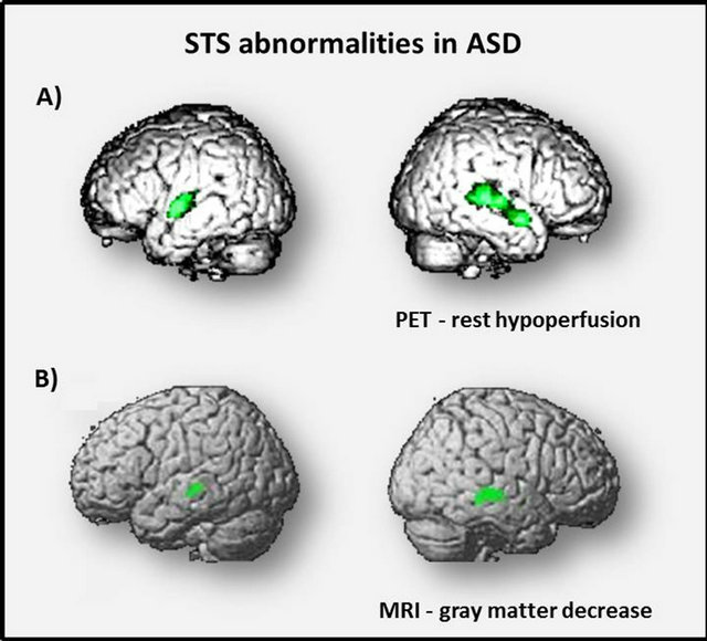 Autism, social cognition and superior temporal sulcus