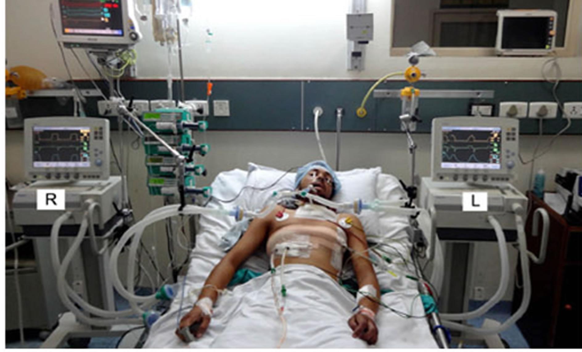 Medical ICU Ventilator, Hospital Ventilator, ICU ...  |Ventilator