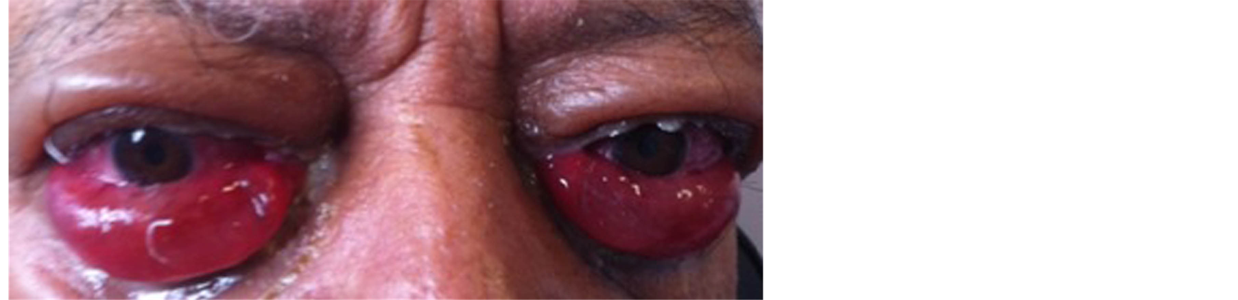 exophthalmos chemosis and visible bilateral conjunctival hyperemia exophthalmos white hypersecretion