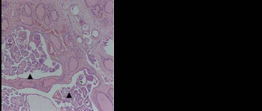 Diffuse Sclerosing Variant of Papillary Thyroid Carcinoma
