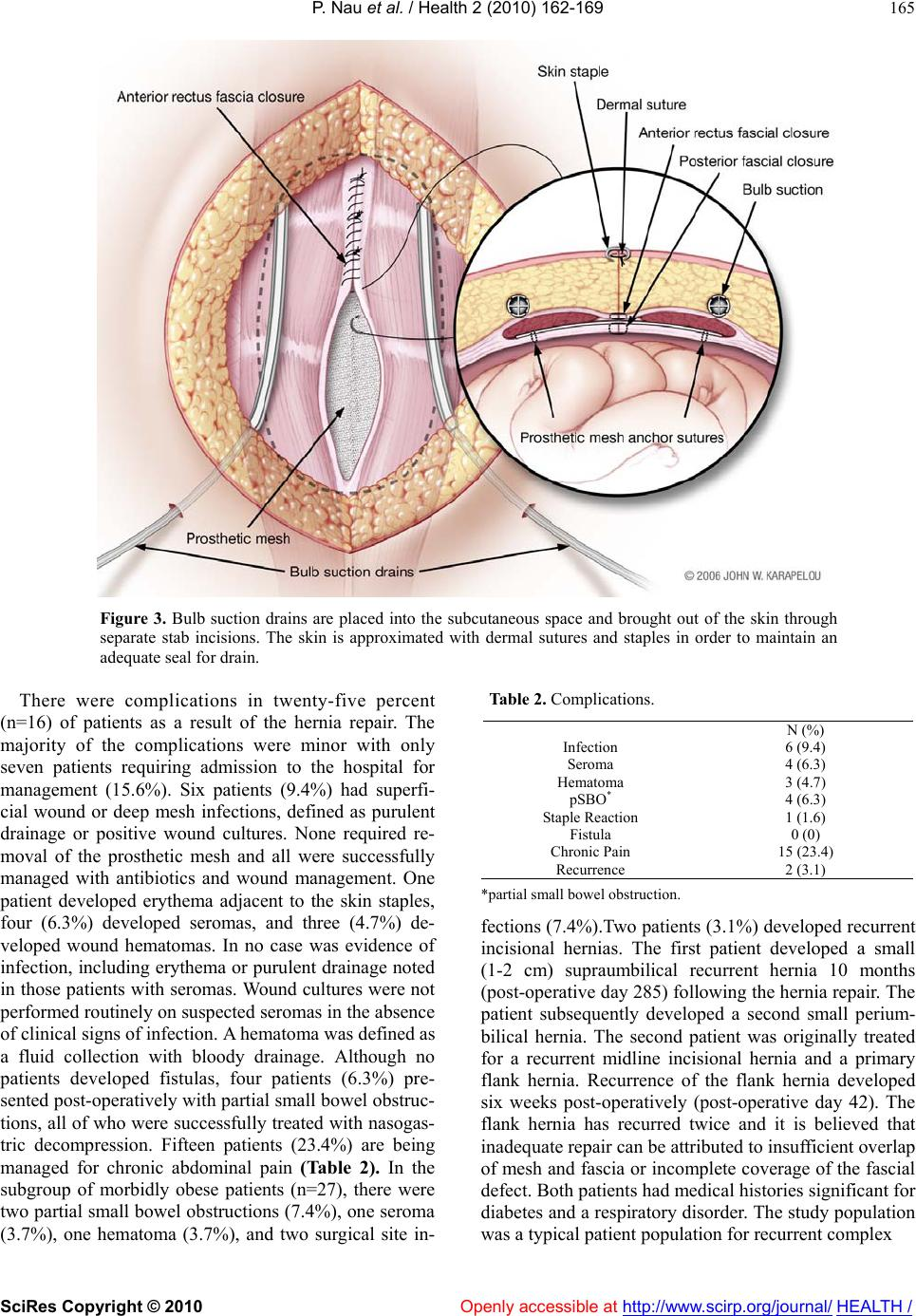 Modified rives-stoppa repair for abdominal incisional hernias