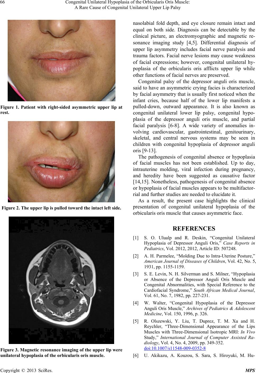 Congenital Unilateral Hypoplasia Of The Orbicularis Oris Muscle A