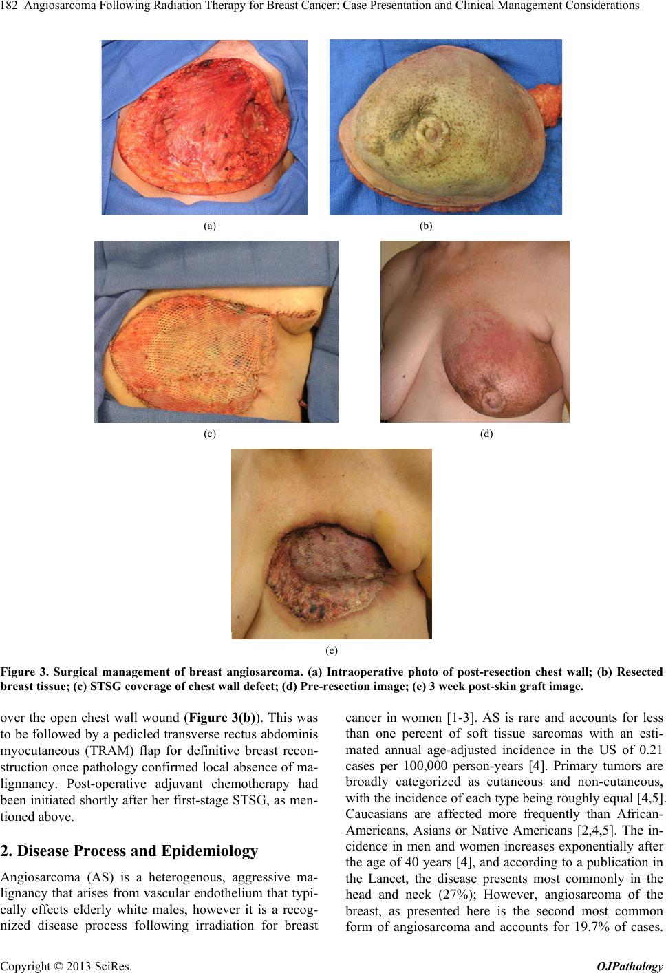 Pictures of and radiation chest wall inflammation and radiation - Angiosarcoma Following Radiation Therapy For Breast Cancer Case Presentation And Clinical Management Considerations