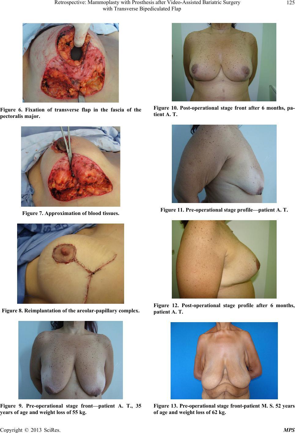 Breast prosthesis in pennsylvania