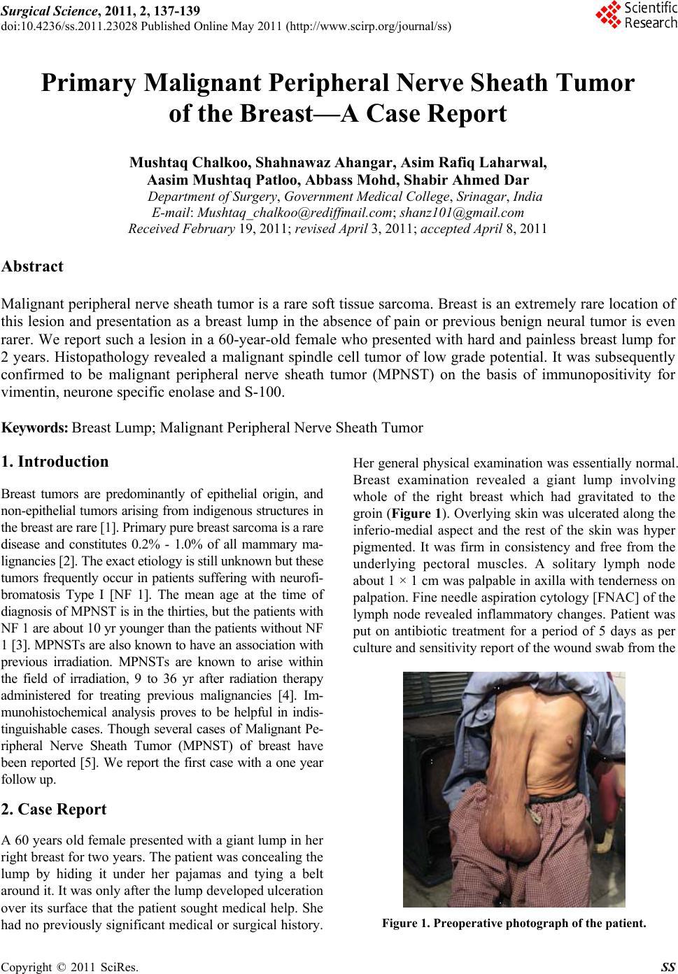 Primary Malignant Peripheral Nerve Sheath Tumor Of The border=